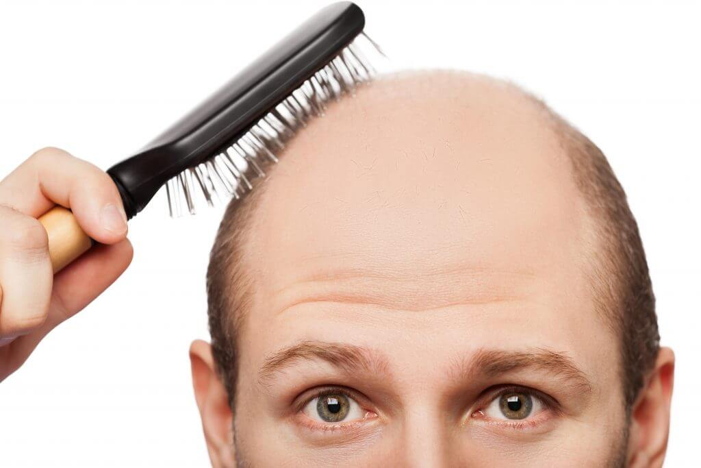 Hair Transplant in Ahmedabad Musk Clinic