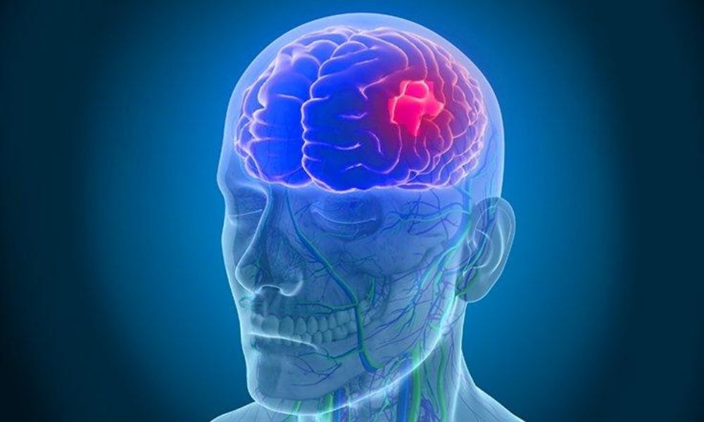 blood clot in brain surgery cost in india